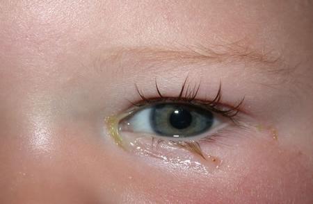 bebeklerde göz çapaklanması, göz çapaklanması, çapak