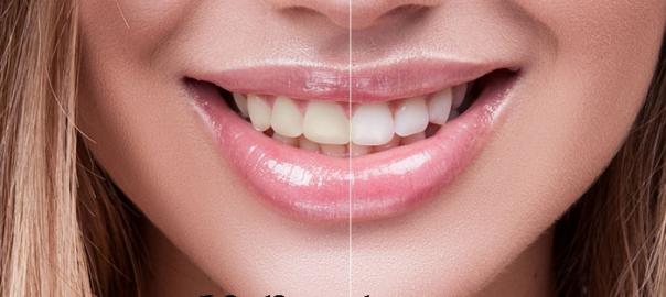 bakteri ve plak oluşumu, diş çürükleri, dişinize verdiği hasar
