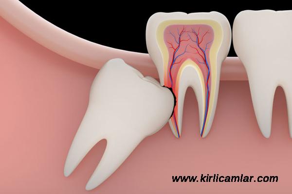 20li yaş dişleri, 20lik diş acısı nasıl geçer, kök diş acısı