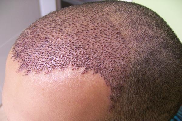 saç ekim doktoru tercihi, saç ekim doktoru tercihinde bulunma, saç ekim doktoru nasıl seçilir