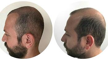 saç ekim merkezleri, istanbul saç ekim merkezi