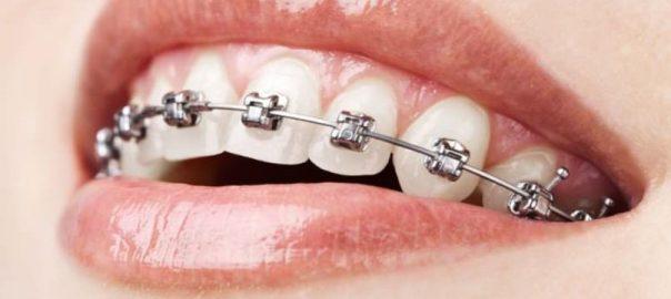 diş teli çeşitleri, diş teli modelleri