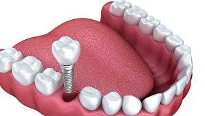 lmaine diş fiyatları, lamine diş yapımı, lamine diş fiyatları ne kadar