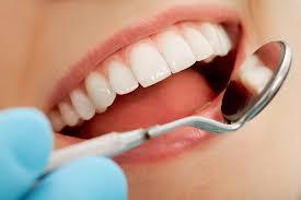 estetik diş hekimi ücreti, estetik diş yaptırma ücretleri, estetik diş yapımı