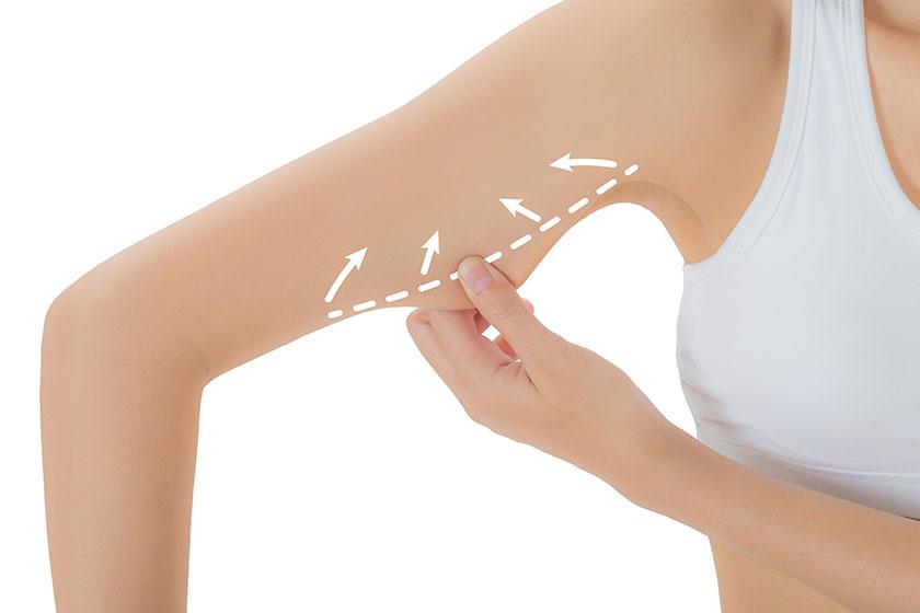 bakırköy liposuction merkezi, bakırköy liposuction hizmeti,