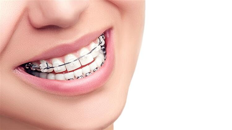 diş teli, diş teli takılması