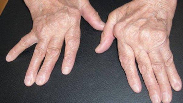 artirit belirtileri, artirit hastalığı tedavisi, artirit tedavi yöntemleri