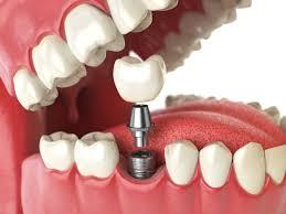 implant yapımı, implant uygulaması, implant yapılabilecek kişiler