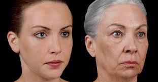 yüz yaşlanması, yüz yaşlanma nedenleri, yüz neden yaşlanır