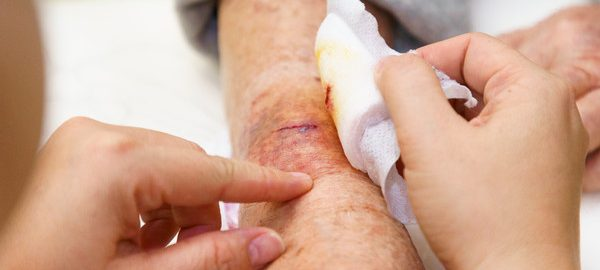 yaralar ve sütüre işlemi, yaralara müdahale edilmesi, yaralar nasıl geçirilir