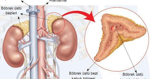 adrenalektomi nedir, adrenalektomi ve adrenal hastalıklar, adrenal hastalıklar nedir