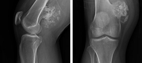 kemik tümörü, kemik tümörü belirtisi, kemik tümörü tedavisi