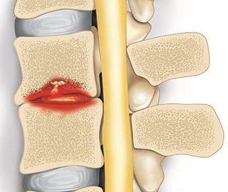 omurga enfeksiyonu